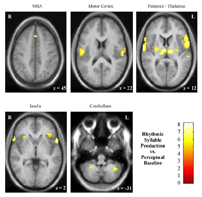 Sprache und Gehirn | Bildgebende Verfahren